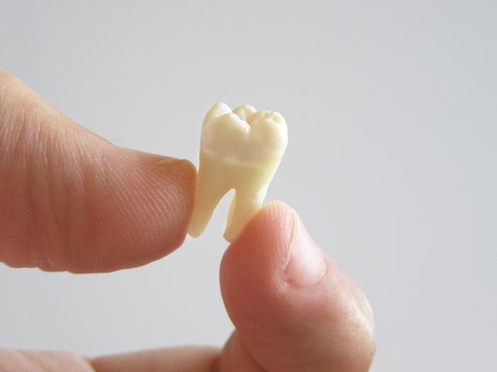 Если снится выпавший зуб, то стоит воспринять это как предупреждение. /Фото: static.tildacdn.com