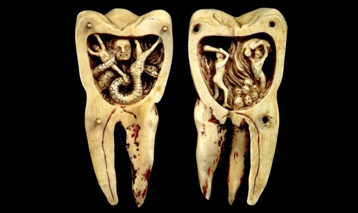 Зубным червем называли кариес. /Фото: startsmile.ru