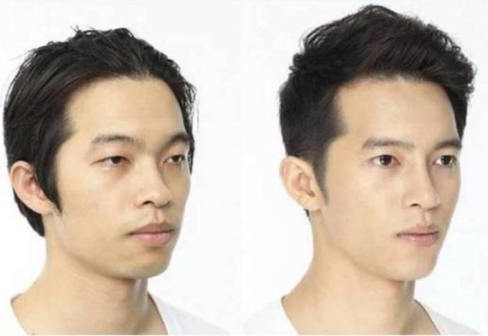 Мужская пластика в Южной Корее не менее популярна, чем женская./Фото: i1.wp.com