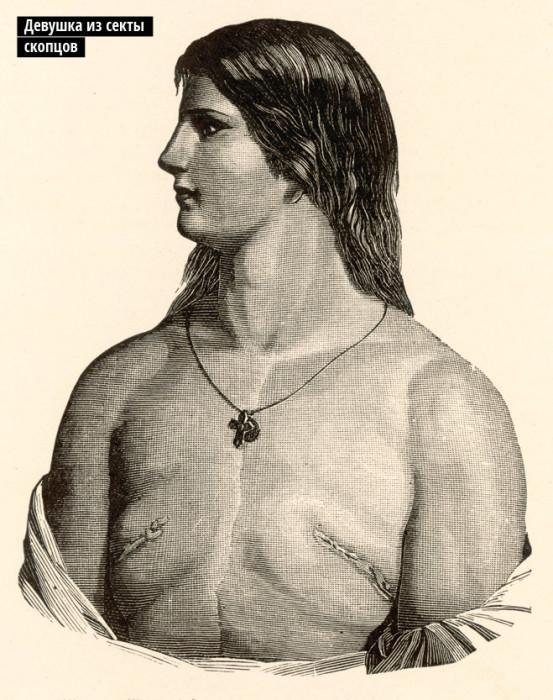 Оскоплённая женщина, у которой была удалена грудь./Фото: itd1.mycdn.me