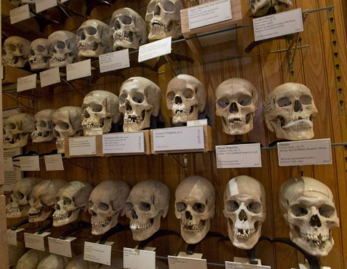 Коллекция черепов музея Мюттера в Филадельфии (США)./Фото: img.pravda.ru