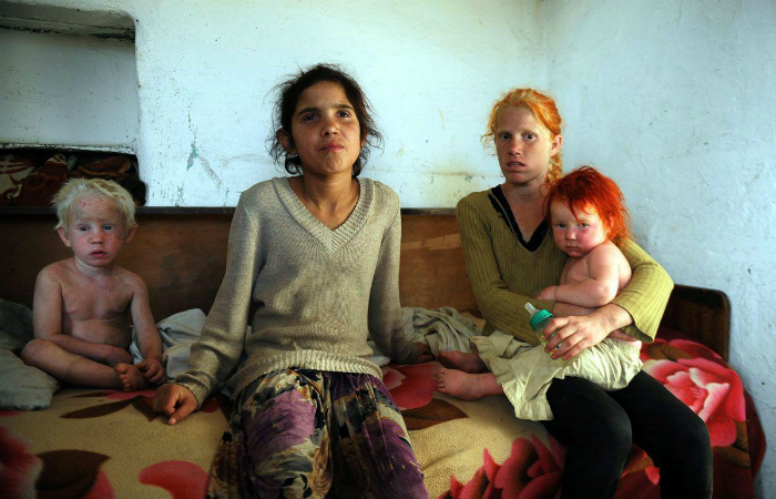 Саша Русева одинаково растила своих детей, и светлых, и тёмных, не зная, что за альбиносами нужен особенный уход.