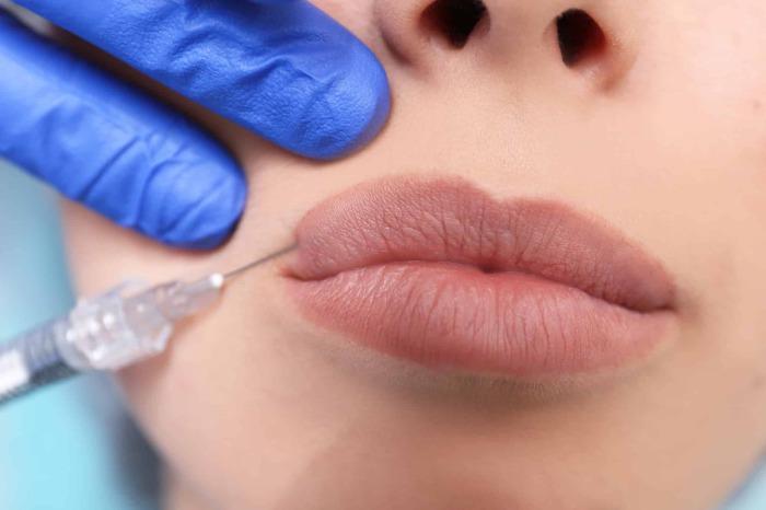 Косметология позволяет сделать губы такими, какие пожелаешь.  /Фото: woman-cosmetolog.com