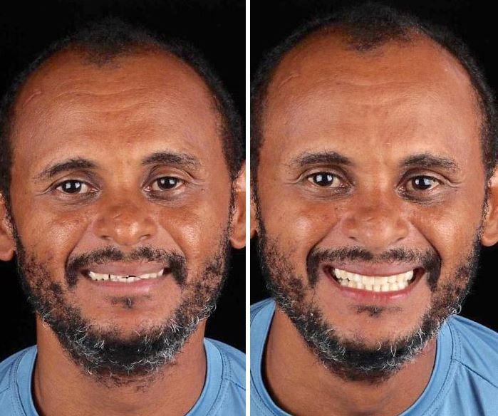 До встречи с дантистом и после: результат налицо. Вернее, на лице.
