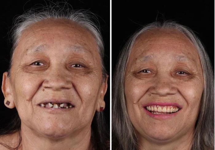 Женщина до посещения стоматолога и после.