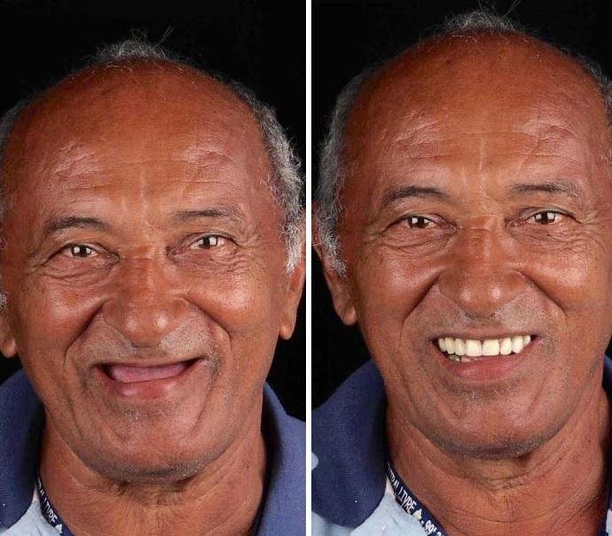 Человек меняется кардинально. А ведь достаточно просто вставить новые зубы.