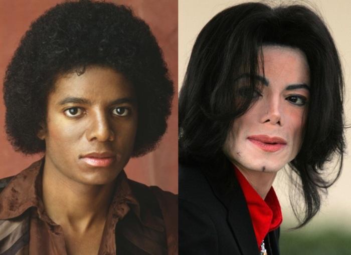 Майкл Джексон перенес, как минимум, две операции по изменению носа, и в последние годы с этой частью лица у него было не все в порядке. /Фото::300experts.ru
