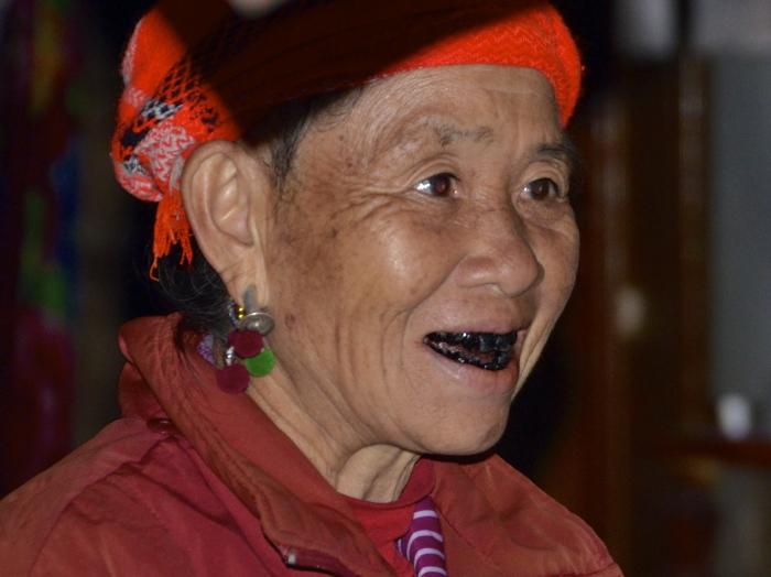 Чернение зубов в современном варианте. /Фото: keywordsbasket.com