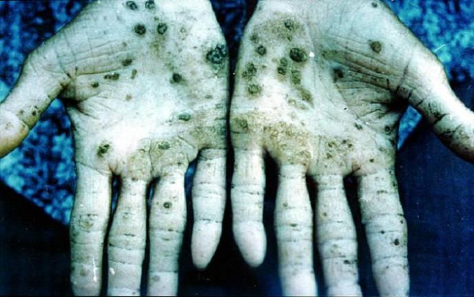 Так выглядит кожа при отравлении медью и сопутствующими ей оловом и мышьяком