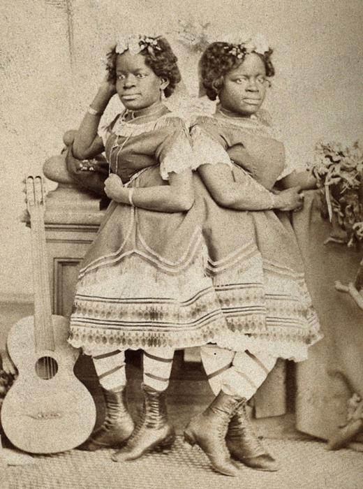 «Двухголовый соловей» - сиамские близнецы Маккой