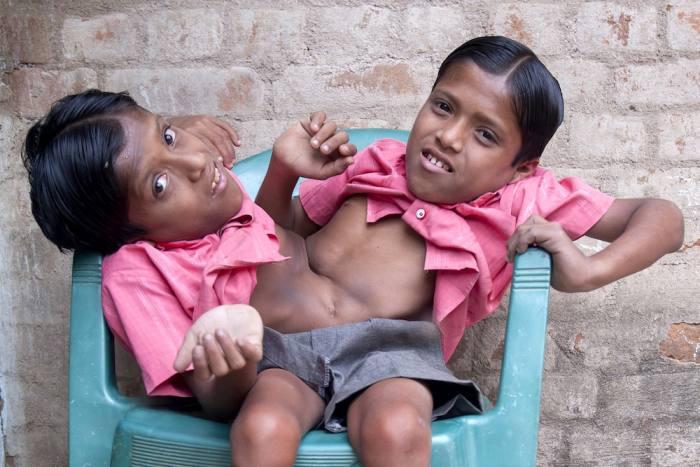 Сиамские близнецы Шиванатх и Шиврам Саху