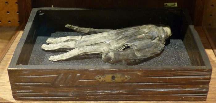 Рука славы, обнаруженная в начале XX века в Великобритании