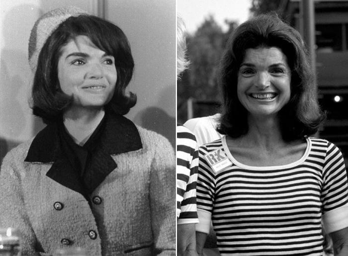 Икона стиля Жаклин Кеннеди вовсе не была красавицей в классическом стиле. На некоторых, менее удачных, фотографиях видны недостатки ее внешности, которые она тщательно умела скрывать.