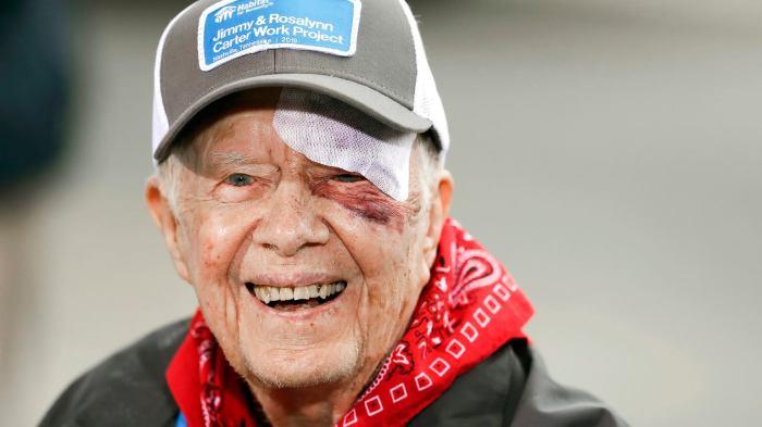 95-летний Джимми Картер выходит из больницы после травмы. / Фото: www.bi.im-g.pl