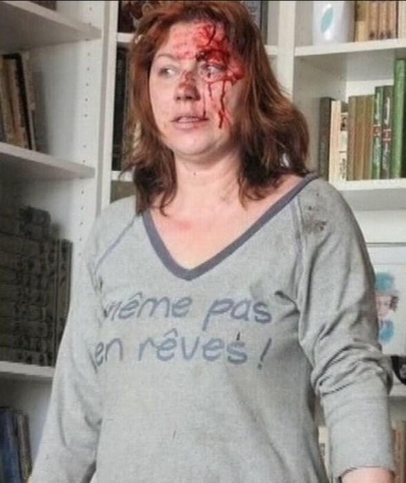Роза Сябитова после избиения. / Фото: www.warnet.ws
