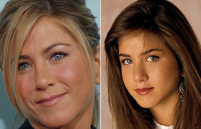 Дженнифер Энистон до и после пластики носа