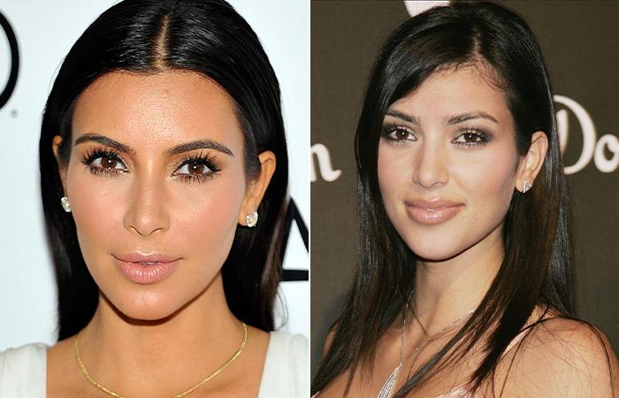 Ким Кардашьян до и после пластики
