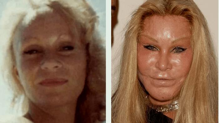 Джослин Вильденштейн: фото «до» и «после» многочисленных пластических операций / Фото: dnpr.com.ua