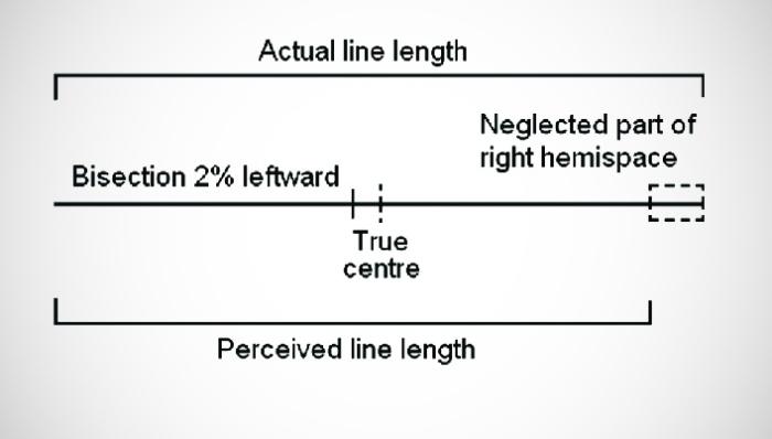 Пример эксперимента с эффектом псевдопренебрежения / Источник: researchgate.net