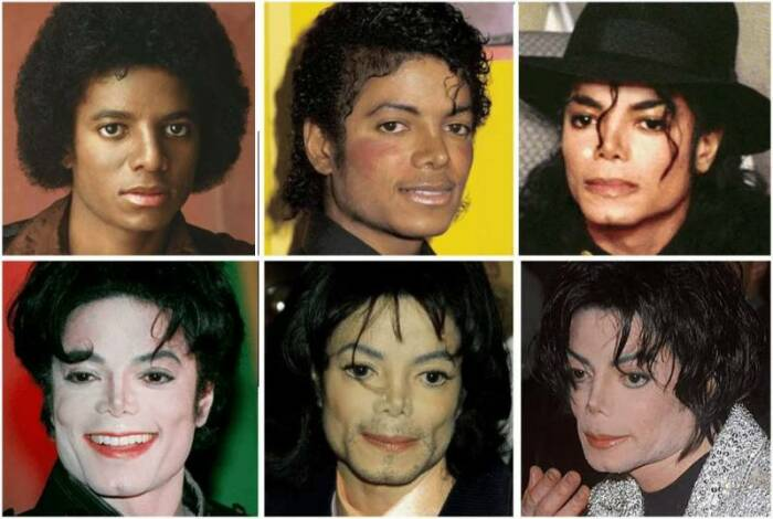 Многие заблуждались, почему Майкл Джексон осветлял кожу. / Фото:prostolike.net