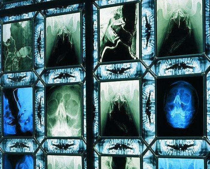 Витражи на костях от Вима Дельвуа (Wim Delvoye)