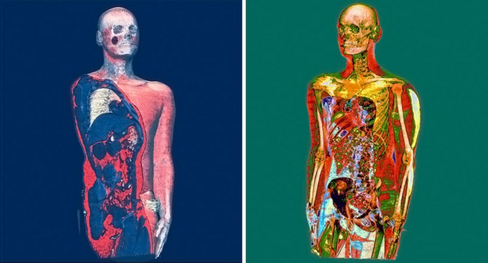 Портреты на томографе Interior Landscape от Ксавье Луччези (Xavier Lucchesi)