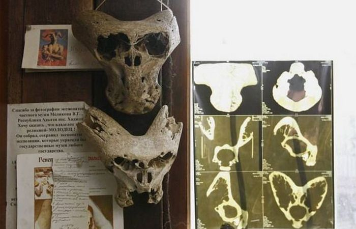 Рентген черепов.