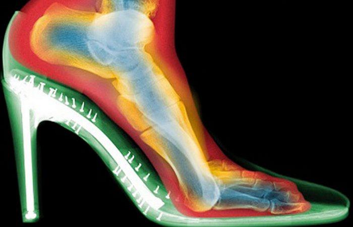 Каблуки разной высоты как спасение от хроматы. / Фото: dietology-health.ru