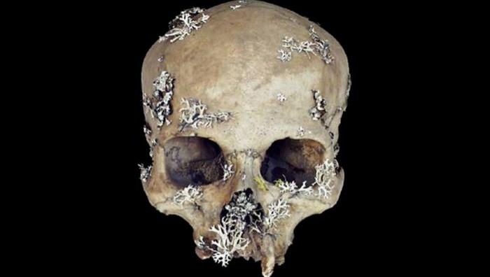 Мох из черепа мертвеца как средство от ран.