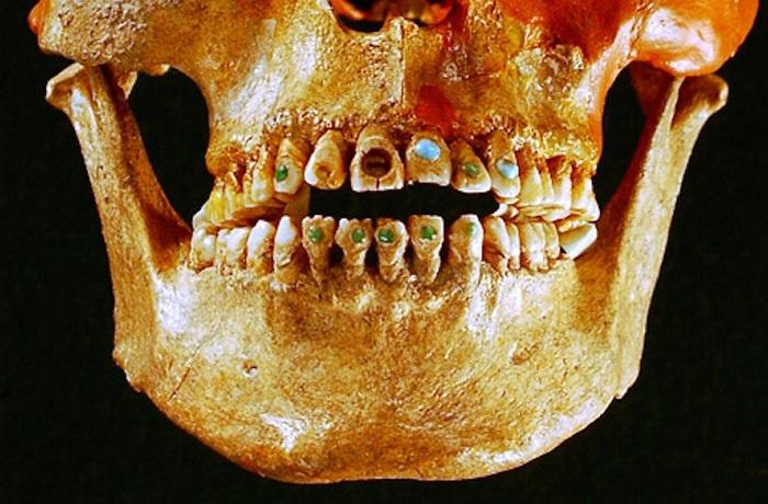 Древняя инкрустация зубов.