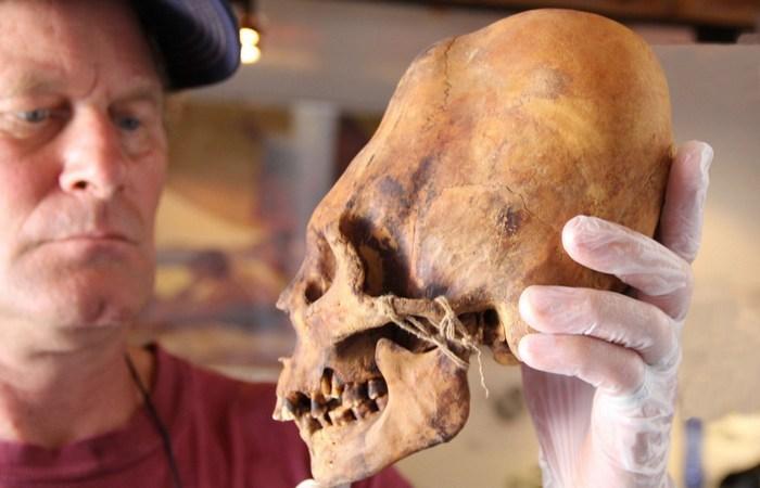 Деформация ради красоты: череп Паракаса. / Фото: weshapelife.org