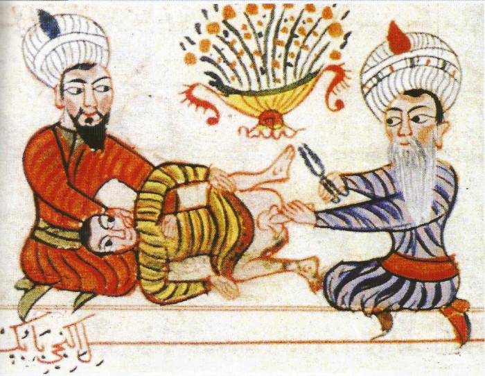 Сцена обрезания из манускрипта середины XV века.