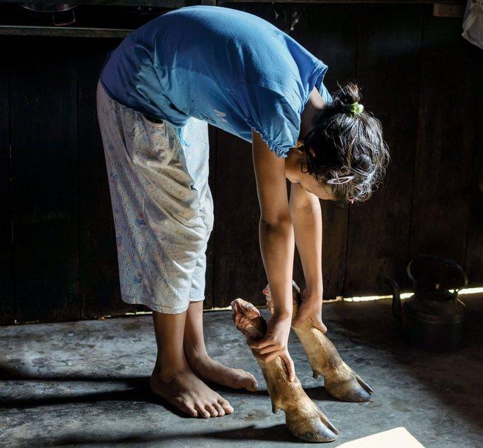 12-летняя Беслинда Кхонгдуп держит в руках коровьи ноги, из которых кхаси варят суп. Хотя большинство индийцев является индуистами, и коровы для них священны, жители Маулиннонга - христиане и, следовательно, могут есть говядину.