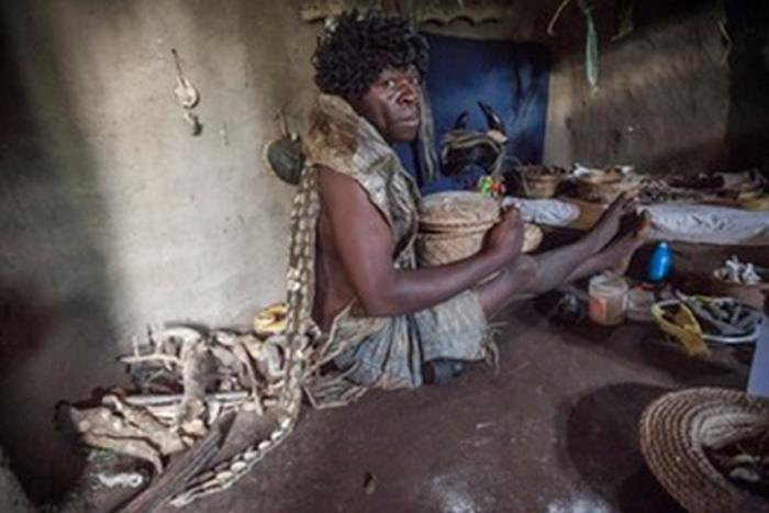 Габриэле Антсени лечит пострадавших от нападений крокодилов.