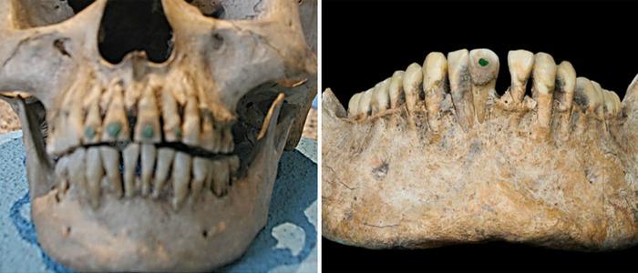 Зубы инкрустированные бирюзой. | Фото: medvoice.ru