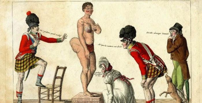 Британский хирург Уильям Данлоп обратил внимание на особенности фигуры Саарти - большие выпирающие ягодицы.