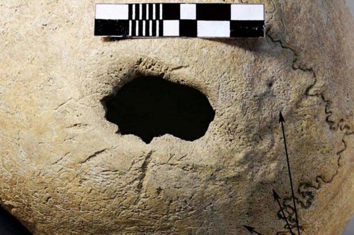 Самая древняя трепанация черепа.