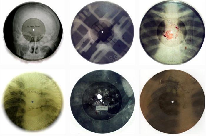 Пластинки-малышки из рентген-снимков.
