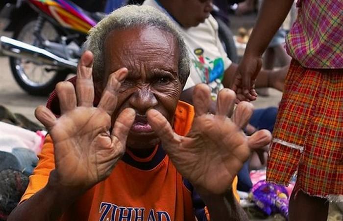 Странная традиция: отрезание пальцев в племени Дани.