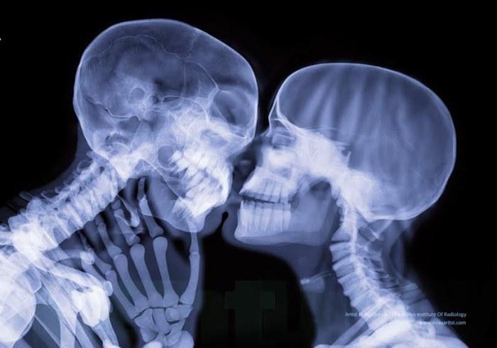 Романтичный поцелуй в неожиданном ракурсе.