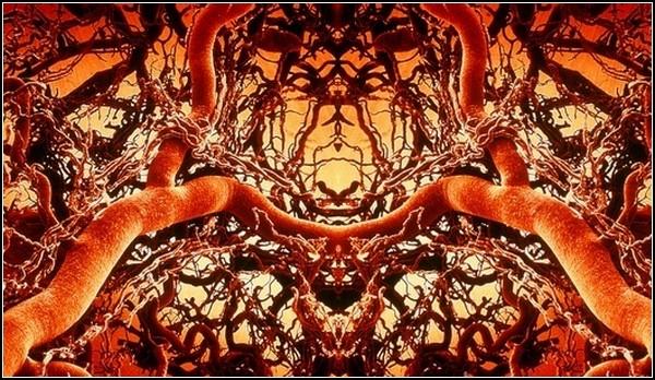 Картинки из микроскопа: лес артерий