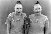"""Пип и Флип: дуэт сестер с """"булавочными головками"""" из цирка уродцев"""
