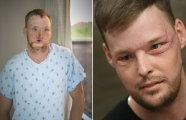 10 лет в ожидании чуда: американские врачи провели сложнейшую операцию по пересадке лица